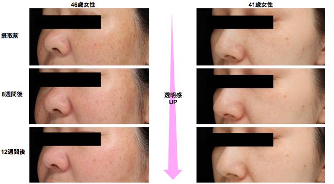 AGハーブMIX接種による美肌作用の資料画像です。